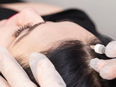Hair Transplant & Hair Loss